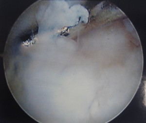 Arthroscopic view of cartilage damage in trochlea (Click to Enlarge)