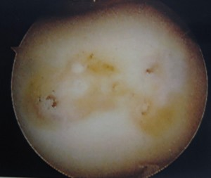 Arthroscopic view after resection of damaged cartilage and microfracture (Click to Enlarge)