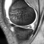 MRI scan showing medial meniscal tear (Click to Enlarge)