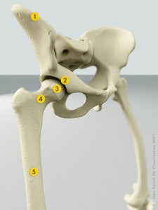 Hip Anatomy (Click to Enlarge)