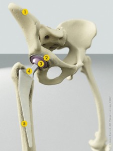 Hip Anatomy with Prosthetic (Click to Enlarge)