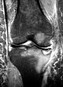 X-ray of AVN of medial femoral condyle (Click to Enlarge)