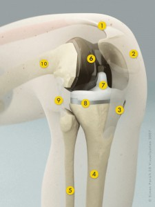 Knee with Replacement (Click to Enlarge)