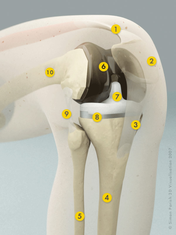 Hip Knee Advice Knee Replacement