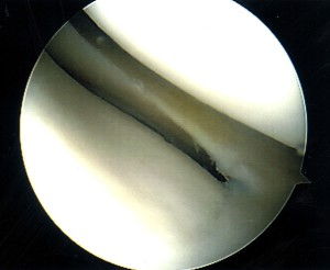 Normal lateral meniscus (Click to Enlarge)