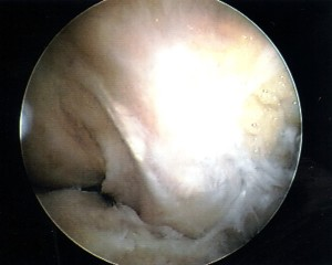 View of normal PCL (ACL absent) (Click to Enlarge)