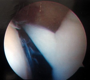 Intraoperative photo showing large synovial plica (Click to Enlarge)
