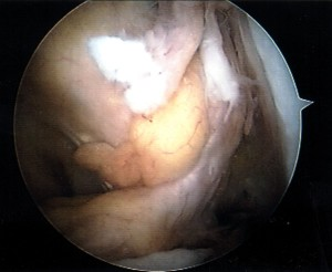 Arthroscopic view of absent ACL due to chronic rupture (Click to Enlarge)