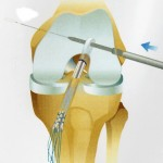 Step 3 : How the ACL graft is fixed in the femur (Click to Enlarge)