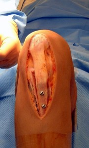 Intraoperative photo after bone and soft tissue realignment (Click to Enlarge)