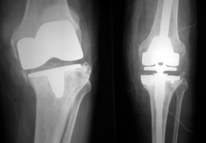 X-rays of a failed knee replacement before and after revision knee replacement surgery (Click to Enlarge)