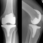 Postoperative X-rays of a Total Knee Replacement (Click to Enlarge)