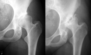 X-rays of dysplastic hip (left) and subsequent collapse due to AVN (right)
